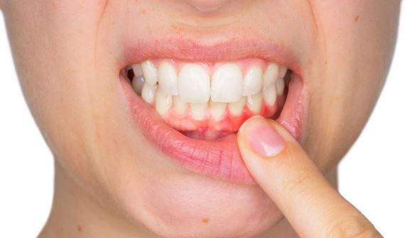 dental problems,dental,tooth problems,common dental problems,dental care,dental problems |,teeth problems,dental problems in hindi,dental problems in telugu,dental problems solutions,dental problems and solutions,home remedy for dental problems,dental hygienist,home remedies for dental problems,tooth cap problems,tooth gum problems,dental pain